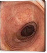 Scars In Colon After Ulcerative Colitis Canvas Print