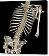 Skeletal Reconstruction Canvas Print