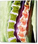 Spine Degeneration, Mri Scan Canvas Print