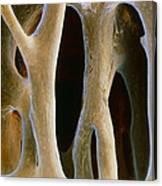 Spongy Bone Canvas Print