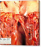 Subacute Bacterial Endocarditis Canvas Print