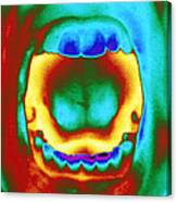 Thermogram Of A Woman's Mouth And Teeth Canvas Print