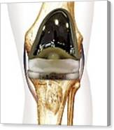 Total Knee Replacement, Artwork Canvas Print