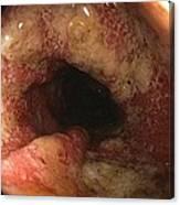 Ulcerative Colitis In The Sigmoid Colon Canvas Print