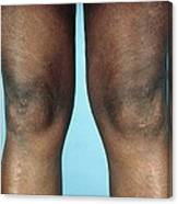 View Of Knees Affected By Osteoarthritis Canvas Print