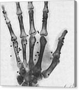 X-ray Of A Hand With Buckshot Canvas Print