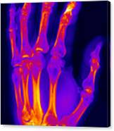 Finger Fracture Canvas Print