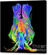 Brain Fiber Tracts, Dti Scan Canvas Print