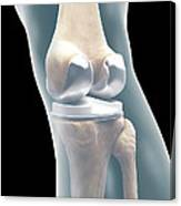 Knee Replacement Canvas Print