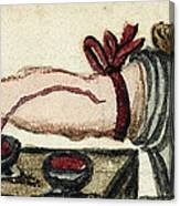 Bloodletting, Illustration, 1675 Canvas Print