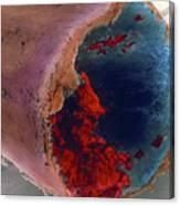 Coloured Sem Of A Blood Clot In Coronary Artery Canvas Print