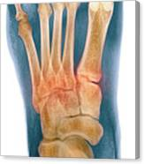 Crushed Broken Foot, X-ray Canvas Print