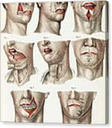 Facial Surgery, Illustration, 1846 Canvas Print