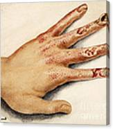Hand With Roentgen Ray X-ray Canvas Print