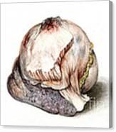 Large Hyatid Cyst In Spleen Canvas Print