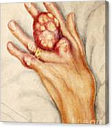 Left Hand With Tophus From Chronic Gout Canvas Print