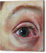 Mike's Cornea Transplant Canvas Print