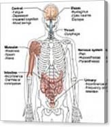 Multiple Sclerosis Symptoms Canvas Print