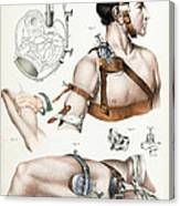 Operative Surgery, Illustration, 1846 Canvas Print