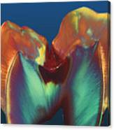 Polarised Lm Of A Molar Tooth Showing Decay Canvas Print