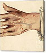 Psoriasis Guttata, Illustration, 1887 Canvas Print