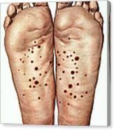 Psoriasis Of Feet, Illustration Canvas Print