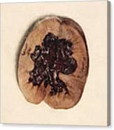 Renal Blood Clot, Kidney, Illustration Canvas Print
