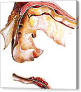 Two Sections Of Aortic Aneurysm Canvas Print