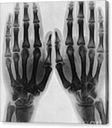 X-ray Of Two Normal Hands, 1896 Canvas Print