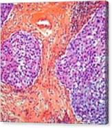 Breast Cancer, Light Micrograph Canvas Print