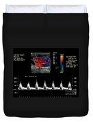 Carotid Duplex Ultrasound Exam Duvet Cover