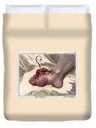 Gout, 1799 Duvet Cover