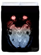 Mri Of Amyloid Angiopathy Duvet Cover