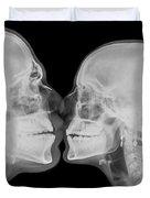 X-ray Kissing Duvet Cover