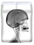 Deep Brain Stimulating Electrodes, X-ray Duvet Cover