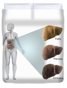 Stages Of Liver Disease Duvet Cover