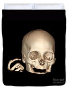 3d Ct Reconstruction Of Head And Hand Duvet Cover