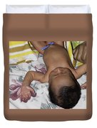 Clamp Tied To Umbilical Cord Of A 5 Day Old Indian Baby Boy Duvet Cover