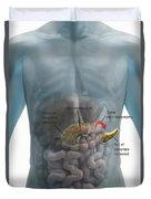 Distal Pancreatectomy Duvet Cover