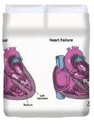 Healthy Heart Vs. Heart Failure Duvet Cover