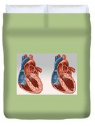 Normal And Diseased Hearts Duvet Cover
