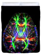 Normal Brain Diffusion Tractography Duvet Cover