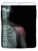 Shoulder Injury Duvet Cover