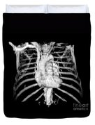 3d Ct Reconstruction Of Heart Duvet Cover by Medical Body Scans