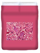 Bacillus Anthracis, Lm Duvet Cover