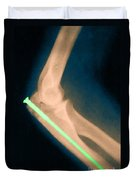 Broken Arm With Metal Pin, X-ray Duvet Cover