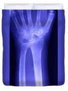 Broken Wrist Duvet Cover