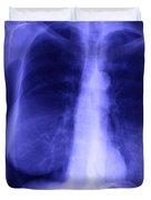 Chest X-ray Of Female Duvet Cover