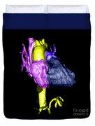 Color Enhanced 3d Cta Of Heart Duvet Cover
