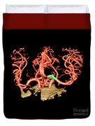 Ct Angiogram Of Aneurysm Duvet Cover